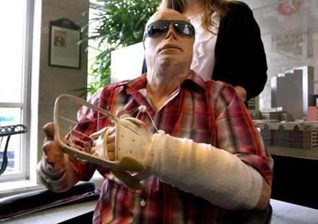 Boston10/25/2012-Joe Kinan, 43, was discharged from Mass General Hospital after receiving a hand transplant. It was the first procedure of it's kind at the MGH Hand Transplantation Service. Kinan was severely burned in the Station nightclub fire. Globe staff photo by John Tlumacki(metro)